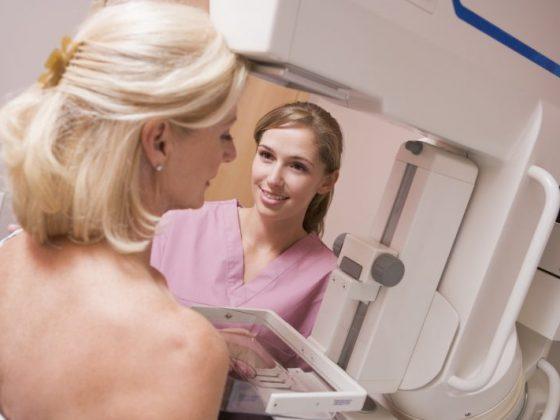 Mastografía: preparación y procedimiento