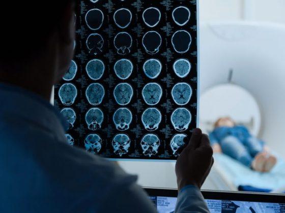 Resonancia de la cabeza: preparación y procedimiento