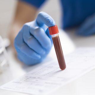Badania laboratoryjne przed podaniem kontrastu
