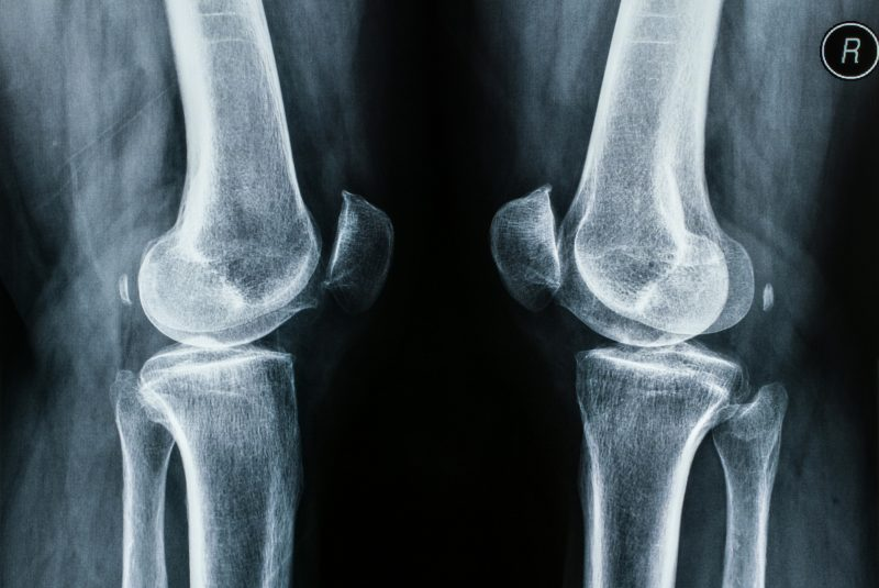 Radiografía de rodilla: preparación y procedimiento