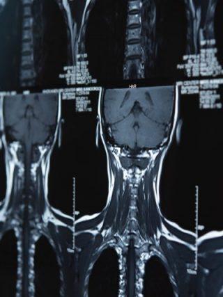Resonancia magnética de columna cervical