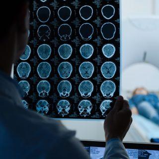 Rezonans magnetyczny głowy - jak przebiega, jak się przygotować