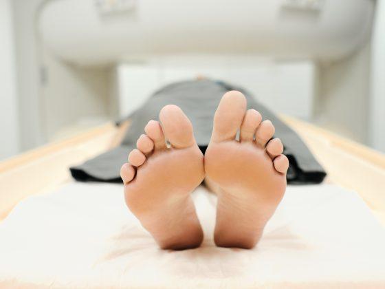 Rezonans magnetyczny stopy - jak przebiega, jak się przygotować
