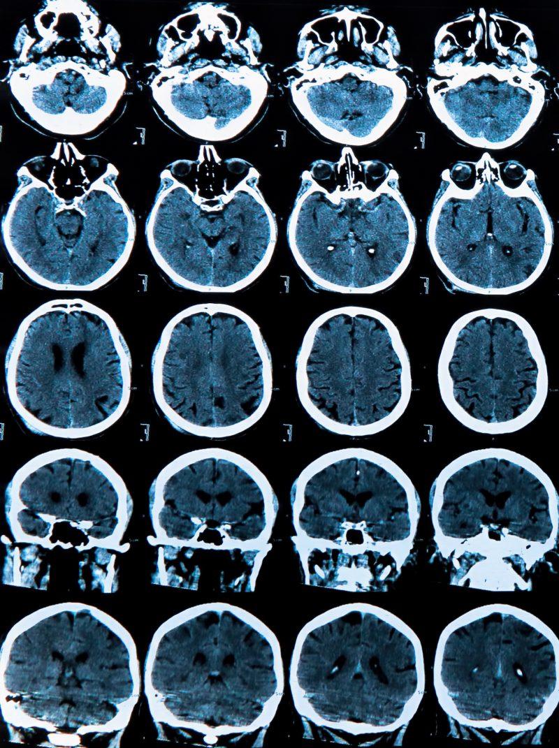 Resonancia magnética de cabeza (cráneo y cerebro)